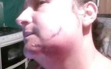 Mujer fue agredida con una pala en Calarcá